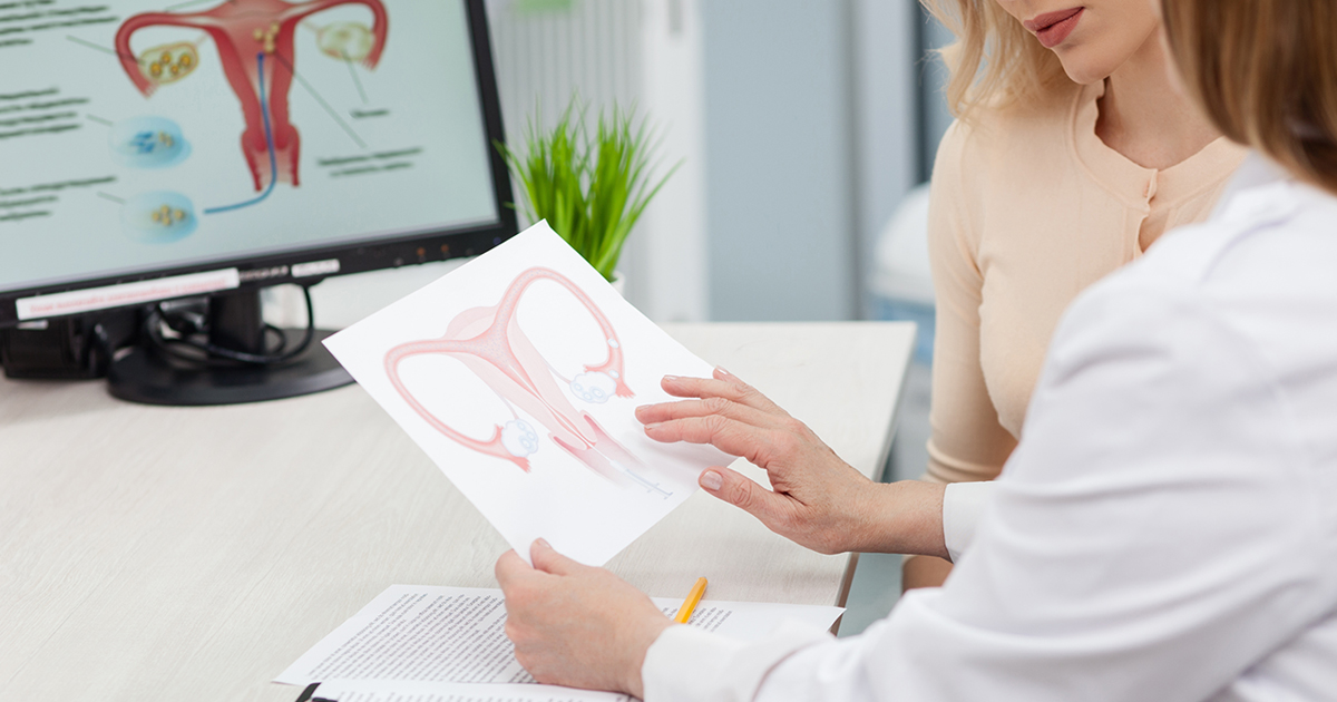 What You Need To Know About Gynecologic Cancers Ctca