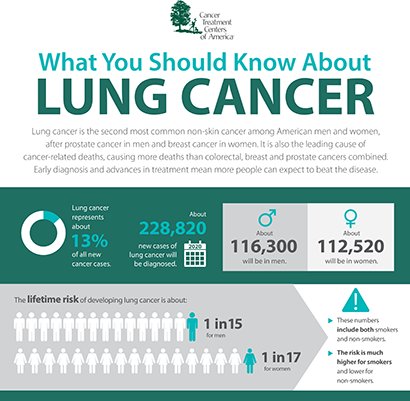 What you should know about lung cancer - Lung cancer Infographic