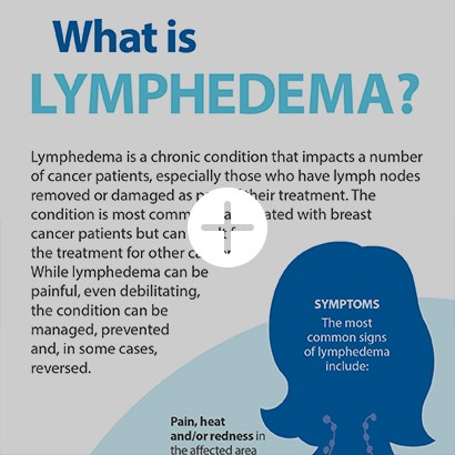 Managing Lymphedema Symptoms & Side Effects of Cancer Treatment | CTCA