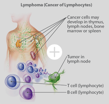 Lymphoma (Cancer of Lymphocytes)