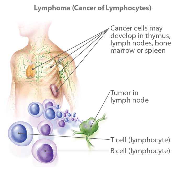 Learn About Non-Hodgkin Lymphoma: Information, Facts