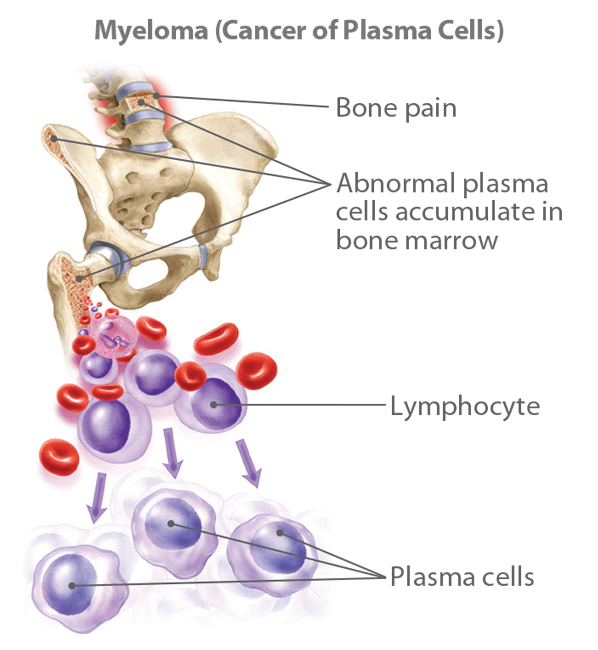 Multiple Myeloma (Cancer of Plasma Cells)